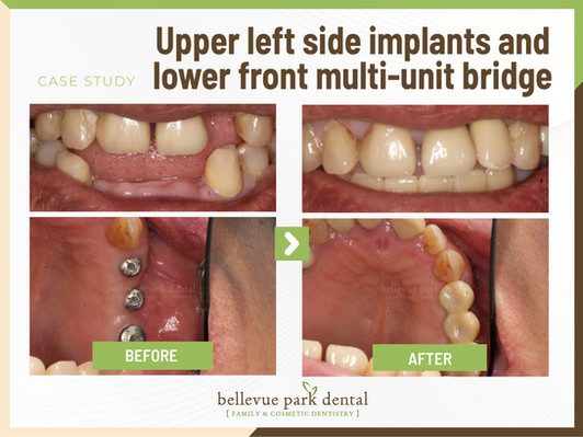 Upper Left Side Implant And Lower Front Multi-Unit Bridge