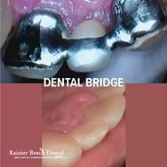 Rainier Beach Dental_Dental Bridge_5.jpg