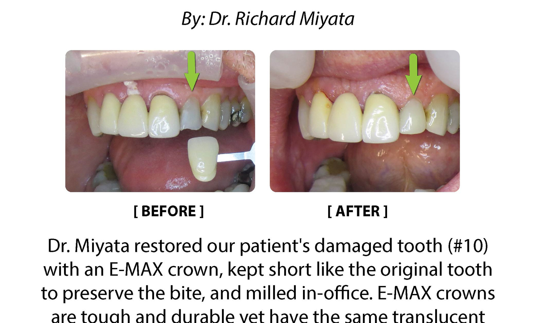Case Study: E-MAX Crown Milled in-office (Tooth 10)