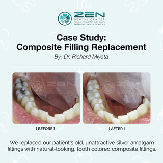 Composite Filling Replacement