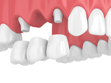 What are Dental Bridges? Your Emergency and General Dentist in Salem, Oregon Explains
