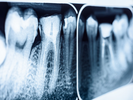 How To Tell When You Need A Root Canal, Explained By Your General Dentist in Seattle, Washington