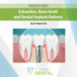 Revive Dental_Case Study_Implant_032219_