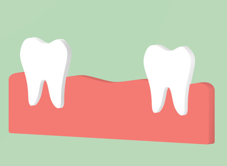 Beaverton Residents Ask: What Are the Consequences of Missing Teeth?