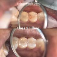 Rainier Beach Dental - Class 2 Filling.j