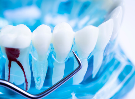 How To Tell When You Need A Root Canal, Explained By Your General Dentist in McKinney, Texas