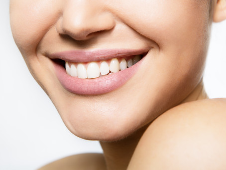 What You Should Know Before Whitening Your Teeth - Your Cosmetic Dentist in Lewisville, TX answers