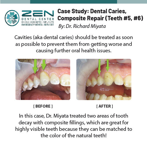 Case Study: Dental Caries, Compostie Reair (Teeth #5, #6)
