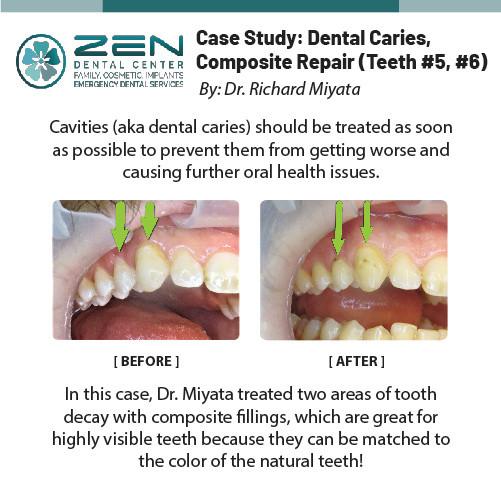Case Study: Dental Caries, Compostie Reair (Teeth #5, #6)
