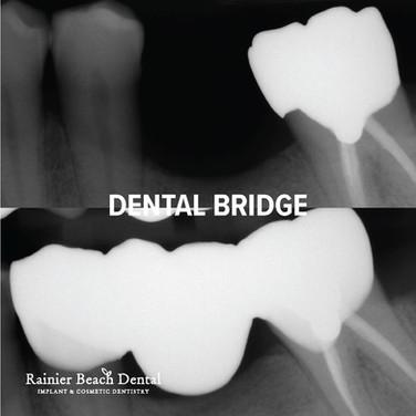 Rainier Beach Dental_Dental Bridge_3.jpg