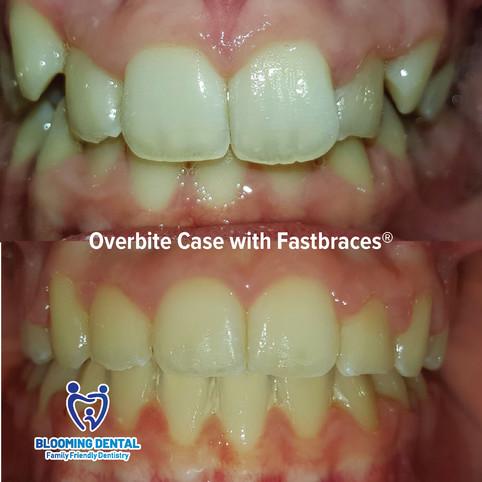 Overbite cae with Fastbraces