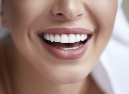 What You Should Know Before Whitening Your Teeth in Irving - Revive Dental