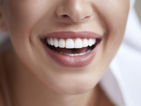 What You Should Know Before Whitening Your Teeth - Cosmetic Dentistry in Irving, Texas