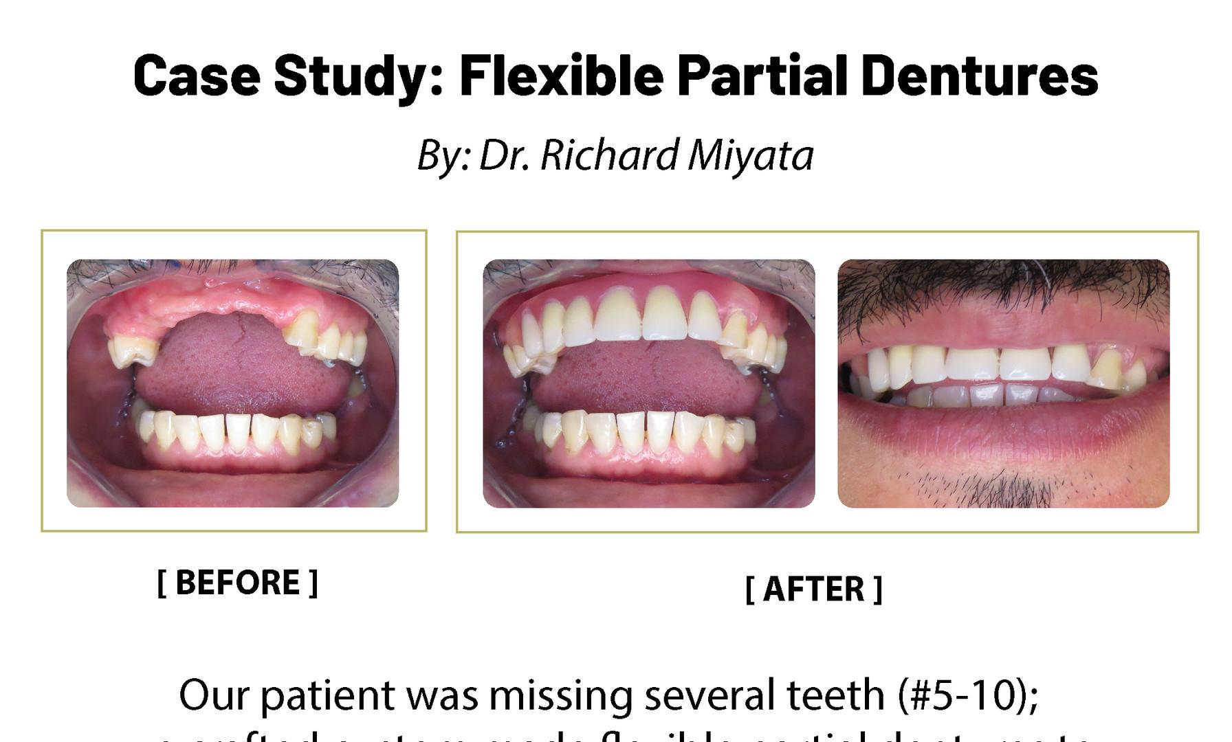 Case Study: Flexible Partial Dentures
