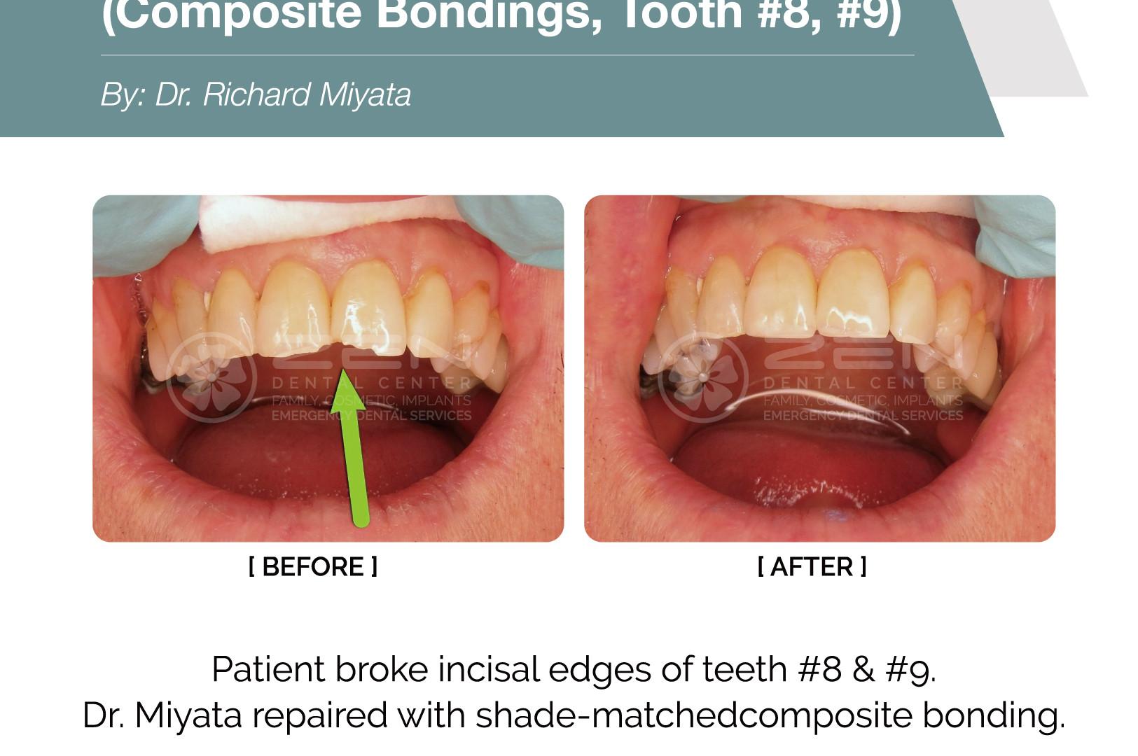Case Study: Incisal Edge Repair (Compoiste Bondings, Teeth 8,9)