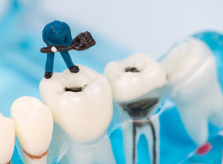 All About Cavities! McKinney Dentist Explains - CK Dental City
