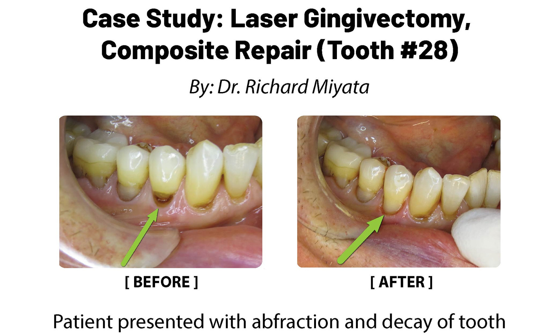 Case Study: Laser Ginviectomy, Composite Repair (Tooth 26)