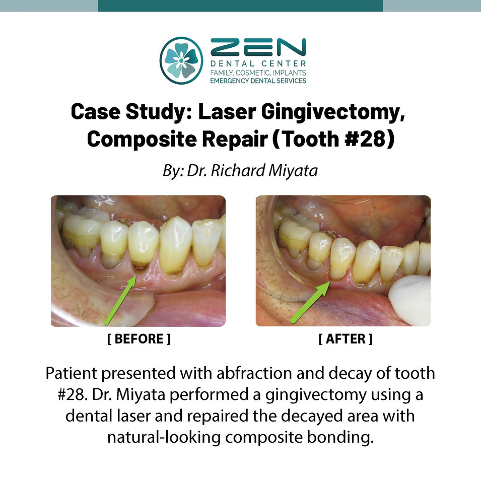 Laser Gingivectomy, Composite Repair (Tooth #28)