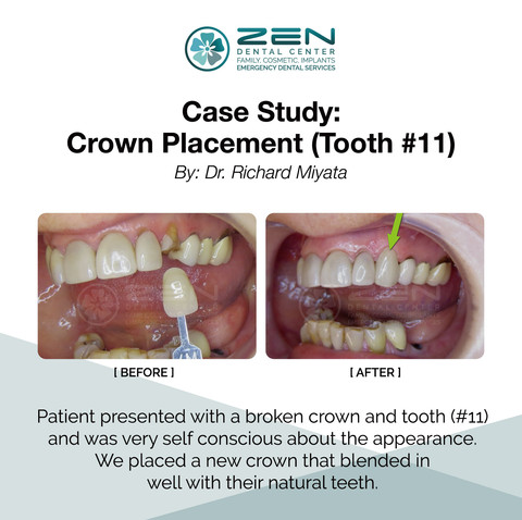 Crown Placement Tooth (#11)