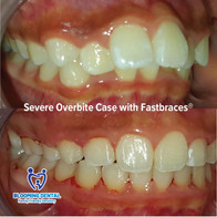 Severe Overbite Case with Fastbraces®