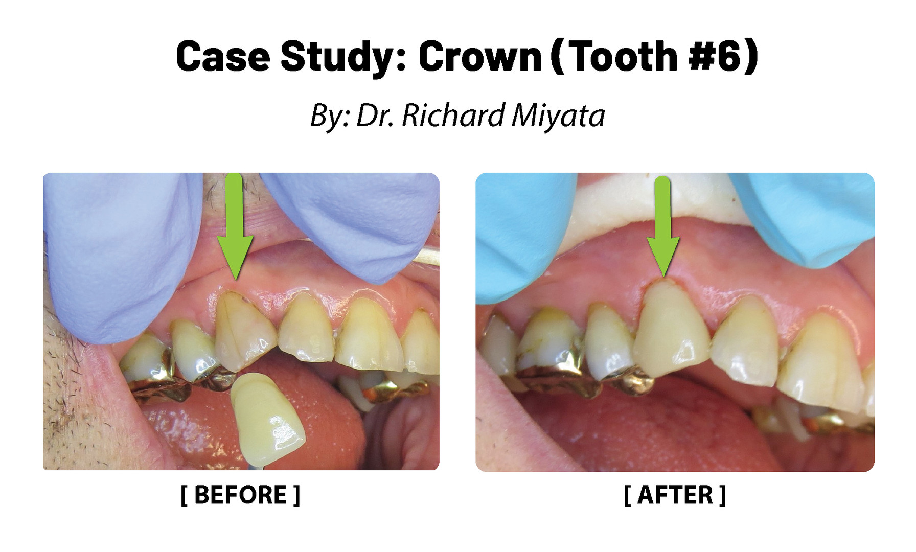 Case Study: Crown (Tooth #6)