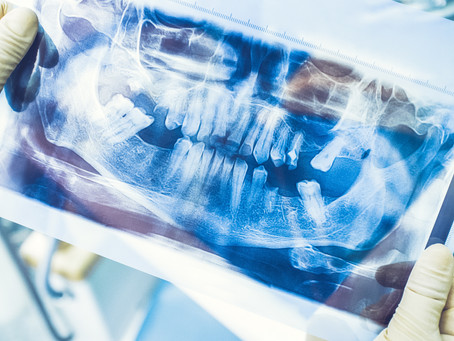 McKinney, TX Residents Ask: What Are the Consequences of Missing Teeth? | CK Dental City