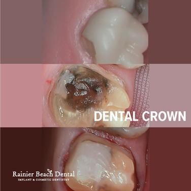 Rainier Beach Dental_Dental Crown.jpg