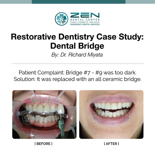 Restorative Dentistry Case Study: Dental Bridge