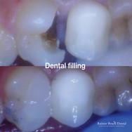Rainier Beach dental_Dental Filling (Deb