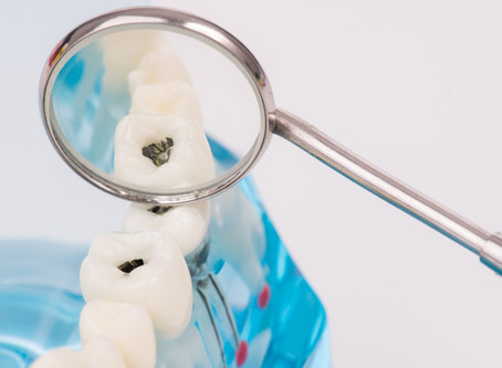 All About Cavities! Seattle Dentist Explains