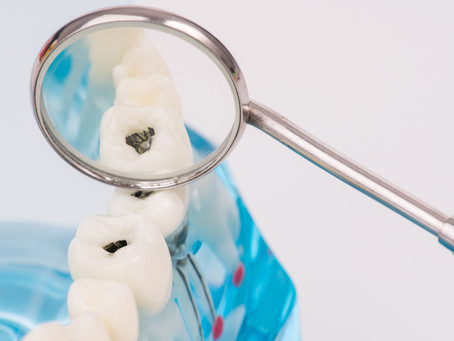 All About Cavities! Learn from Your Family and General Dentist in Seattle, Washington