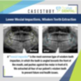 Revive Dental_Wisdom teeth_Case Study_03