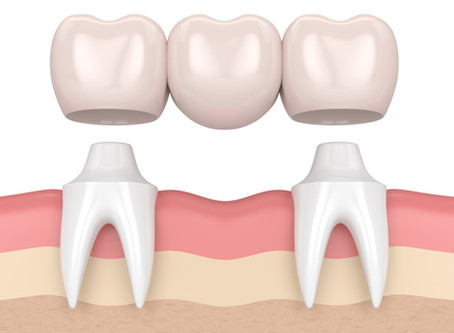 What are Dental Bridges? Your Family and General Dentist in Lewisville, Texas Explains