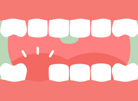Cedar Park What Are the Consequences of Missing Teeth?