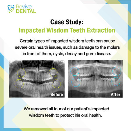 Revive Dental_Wisdom teeth_Case Study_03
