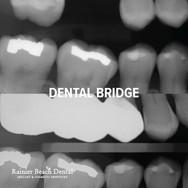 Rainier Beach Dental_Dental Bridge_1.jpg