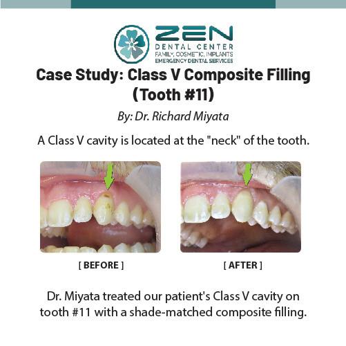 Class V Composite Filling (Tooth #11)