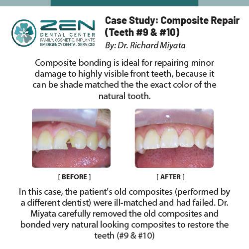 Case Study: Composite Repair (Teeth #9, #10)