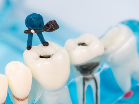 All About Cavities! Your Dallas Emergency Dentist Explains | DentUrgent