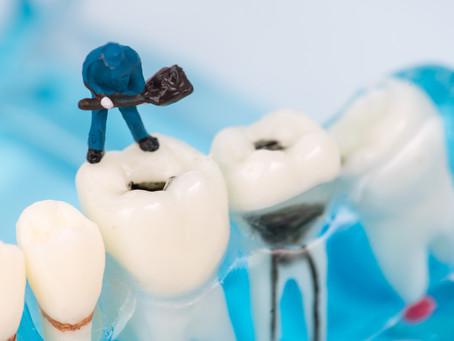 All About Cavities! Your Dallas Emergency Dentist Explains | DentUrgent