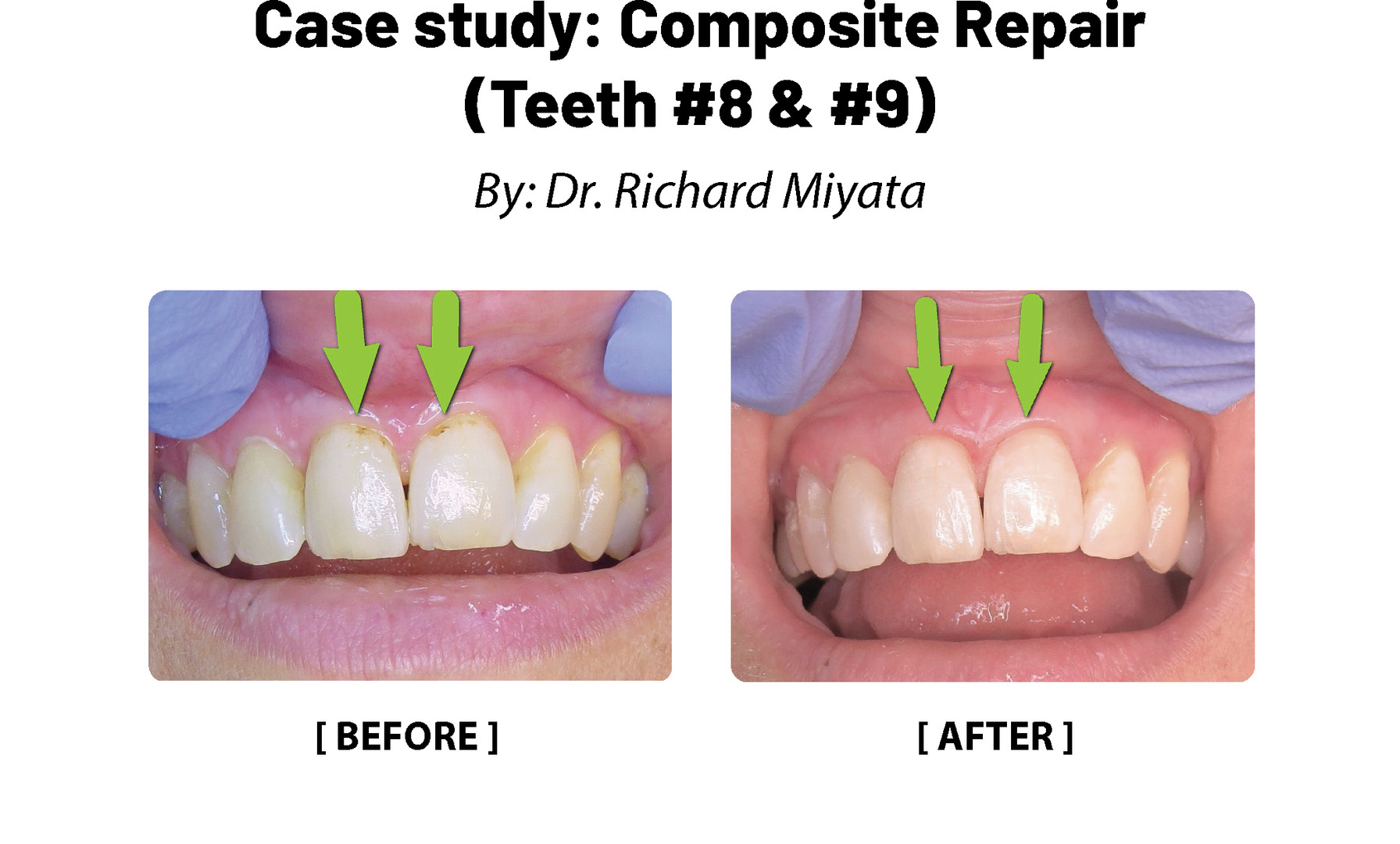 Case Study: Composite Repair (Teeth #8, 9)