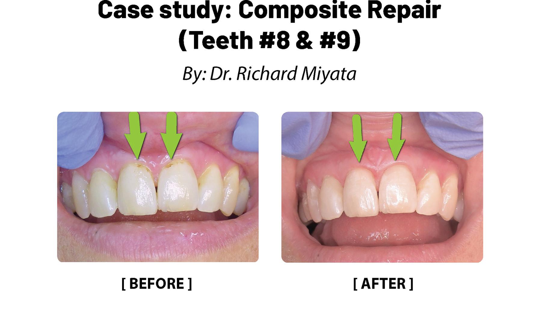 Case Study: Composite Repair (Teeth #8, 9)
