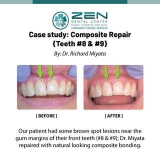 Compoiste Repair ( Teeth #8, 9)