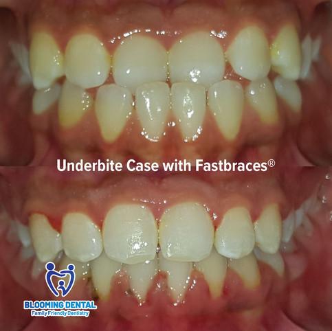 Underbite Case with Fastbraces