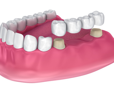 What are Dental Bridges? Explained By Your General and Family Dentist in Portland, Oregon