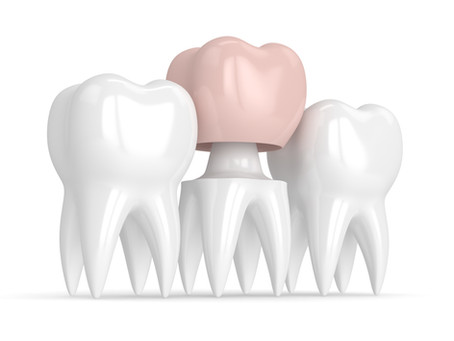 How a Dental Crown Restores a Tooth, From Your Fort Worth Family & General Dentist