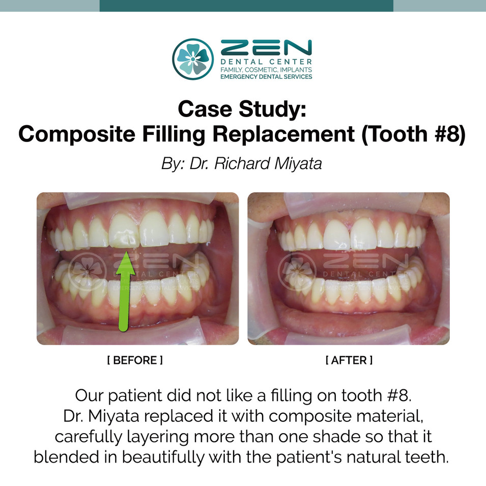 Composite Filling  Replacement (Tooth #8)