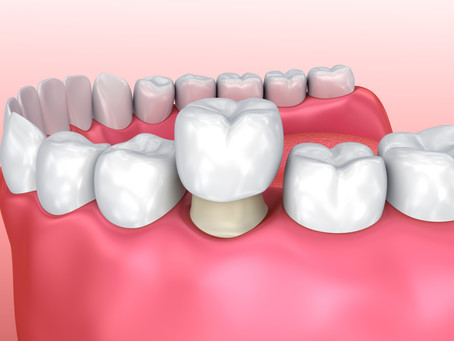 How is a Dental Crown Delivered? Your Fort Worth Family & General Dentist Describes the Process