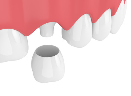How a Dental Crown Restores a Tooth, From Your Auburn Family & General Dentist