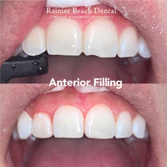 Rainier Beach Dental - Anterior Filling